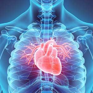 تجهیزات پزشکی قلب و عروق
